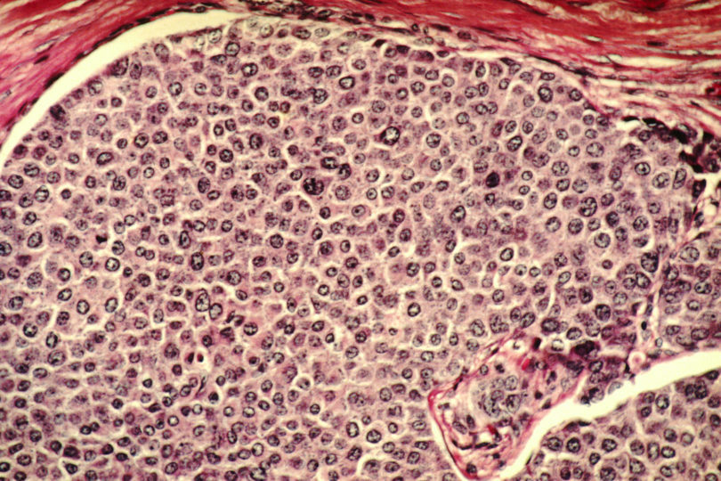 Alternative-Cancer-Medicine-Improve-Your-Odds-Against-Cancer.jpg